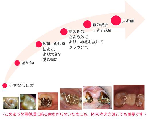 ~このような悪循環に陥る歯を作らないためにも、MIの考え方はとても重要です~